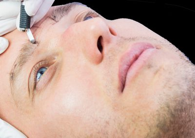 Homme Microblading Micro-pigmentation